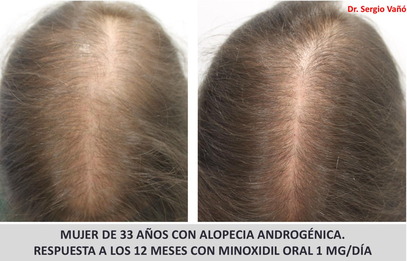 Alopecia Androgenica Femenina Premenopausica Mujeres Perdida De Pelo Cabello Caida Solucion Causas Problema Tratamiento Especialista Medico Clinica Madrid
